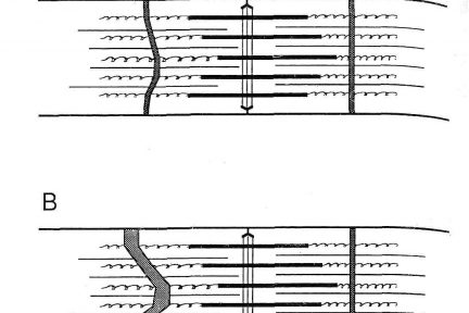 Миниатюра для записи Повреждение мышц посредством упражнений