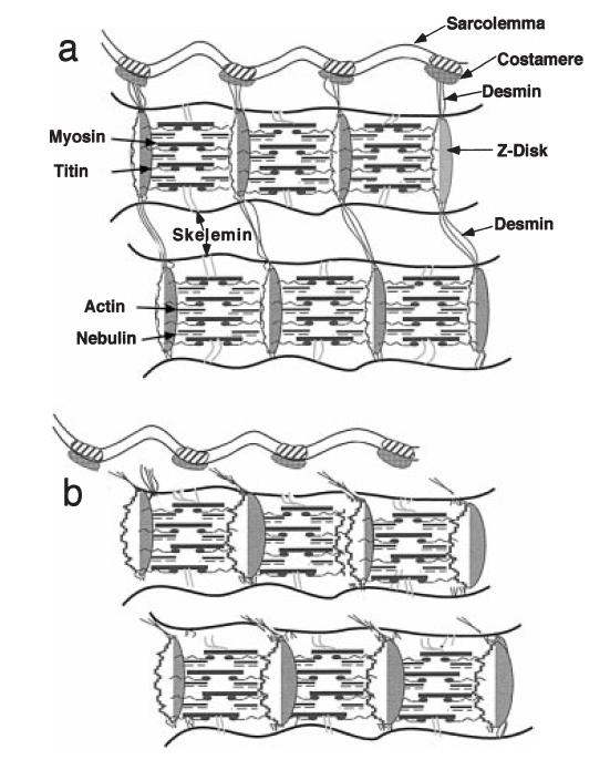Эксцентрические сокращения вызывают повреждение мышечных волокон