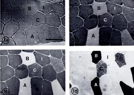 Адаптация различных типов мышечных волокон к нагрузкам