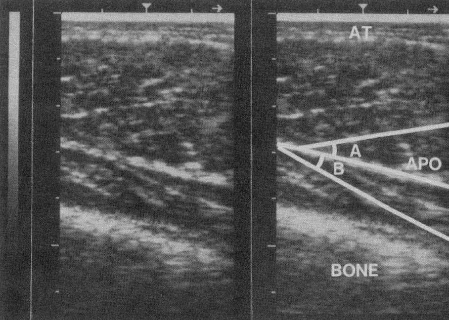 В гипертрофированных мышцах углы перистости больше