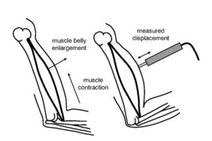 Миниатюра для записи Неинвазивная оценка композиции мышечных волокон