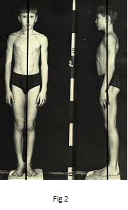 Asymmetry of the Human Body in Space