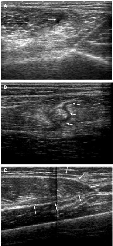 Быстрый и медленный миозины как маркеры повреждения мышц