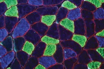 Миниатюра для записи Активность ферментов и состав мышечных волокон в скелетных мышцах