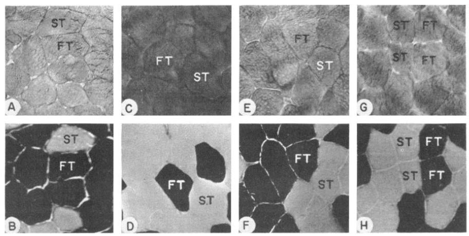 Активность ферментов и состав мышечных волокон в скелетных мышцах