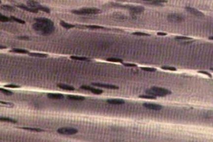 Миниатюра для записи Ядра мышечного волокна (миоядра)