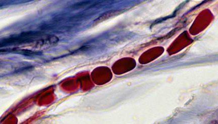 Миниатюра для записи Кровеносные сосуды скелетной мышцы
