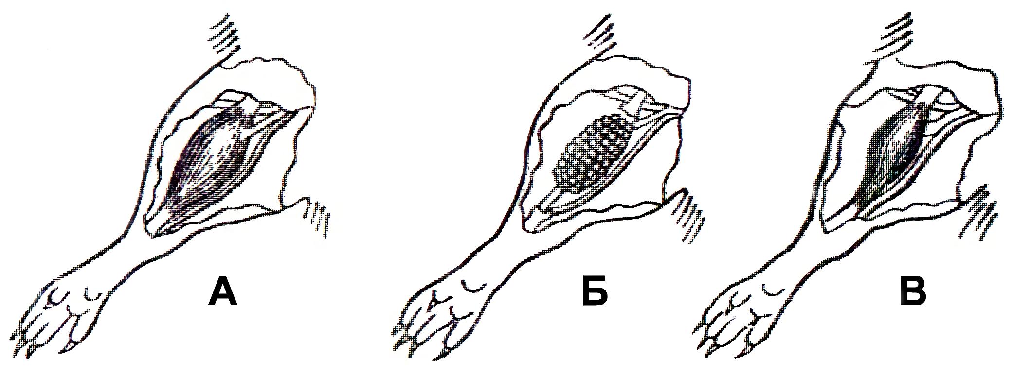 Повреждение и регенерация мышц. Эксперименты А.Н. Студицкого