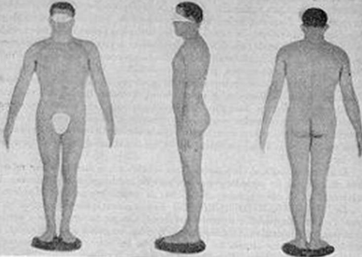 Типы телосложения по Шелдону