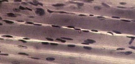 Миниатюра для записи Что такое гиперплазия мышечных волокон?
