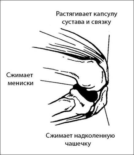 Причины травм опорно-двигательного аппарата спортсменов с точки зрения биомеханики