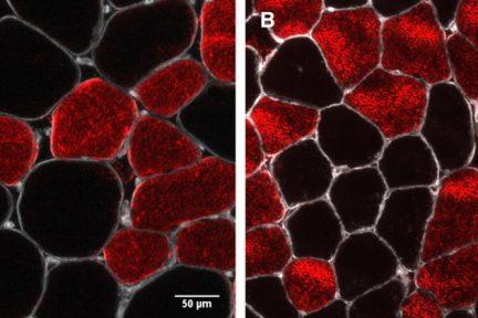Миниатюра для записи Снижение массы скелетных мышц при старении в основном объясняется уменьшением размера мышечных волокон II типа